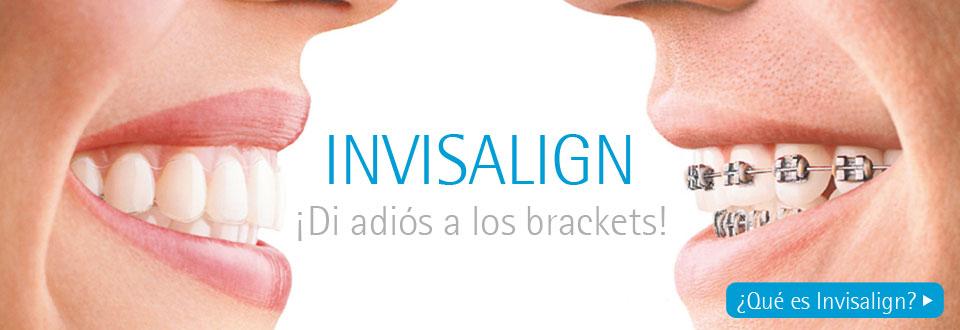 ¿Qué es Invisalign?